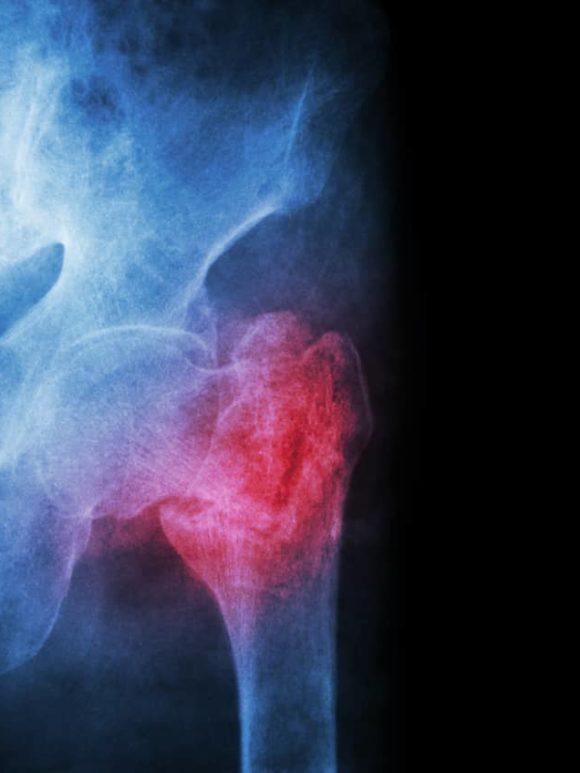 ¿Qué es una rotura de cadera?